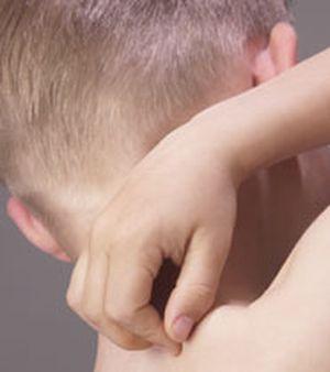 冬季濕疹症狀及預防方式